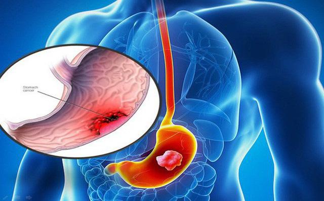 Nguyên nhân dẫn đến bệnh ung thư dạ dày