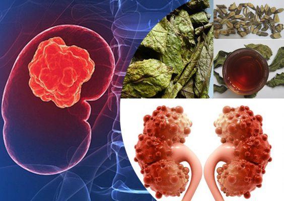 Cây xạ đen hỗ trợ điều trị u và ung thư thận như thế nào