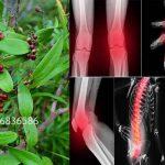 Thổ phục linh hỗ trợ điều trị xương khớp