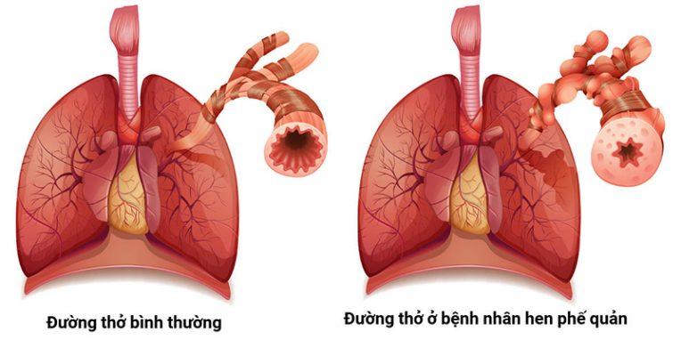 Bài thuốc hỗ trợ điều trị hen suyễn hiệu quả từ mạch môn