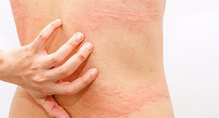 Bài thuốc hỗ trợ điều trị mẩn ngứa nổi mề đay từ cây lá khôi