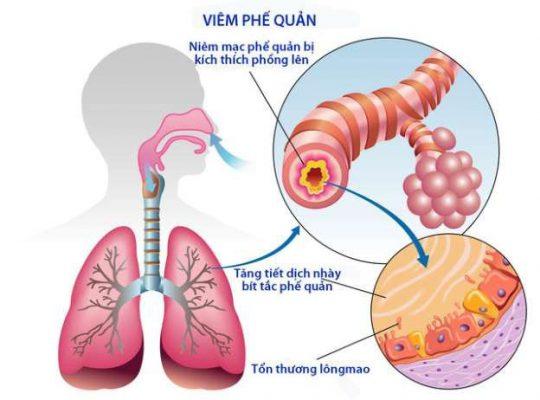 Bài thuốc hỗ trợ điều trị viêm phế quản từ mạch môn