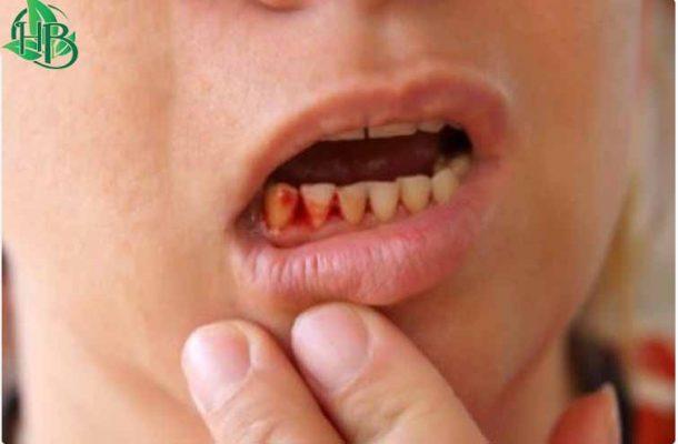 Chữa viêm chân răng bằng bồ kết