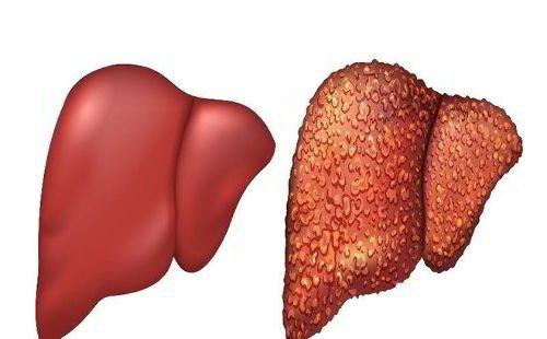 Cách dùng quả sim hỗ trợ điều trị viêm gan