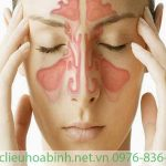 Xuyên tâm liên hỗ trợ điều trị viêm xoang hiệu quả