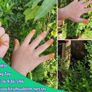 Tác dụng cây lá móng tay